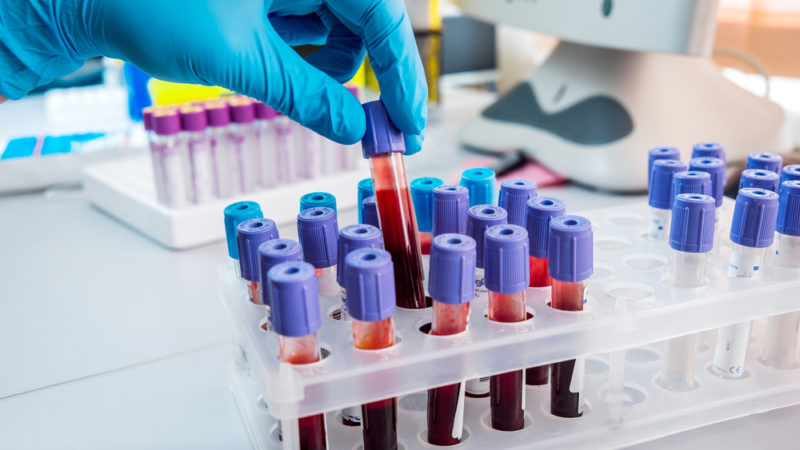Could A Simple Blood Test Replace the Invasive Tissue Biopsy? Giving Compass