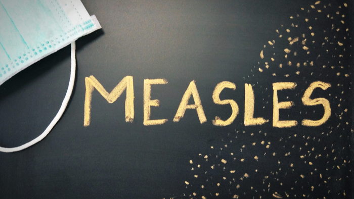 Why Isn't the CDC Releasing Measles Outbreak Predictions