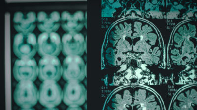 Tauopathies: Impact Philanthropy Opportunities for Neurodegenerative Diseases Giving Compass